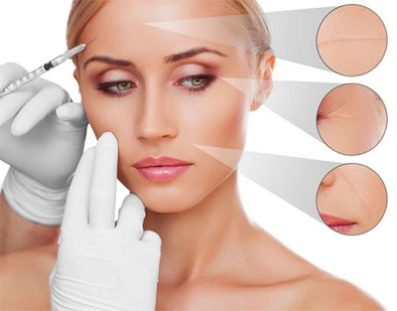 Tratamiento Facial Vampire Facelift