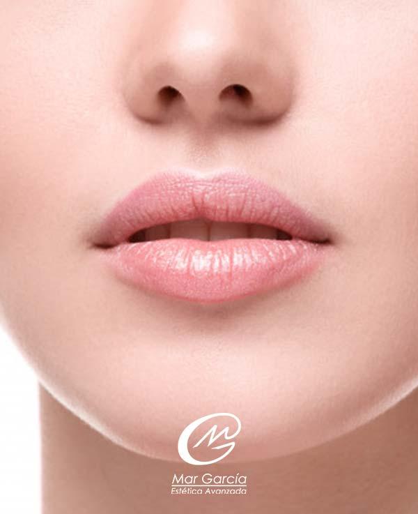 elevar la punta de la nariz con acido hialuronico
