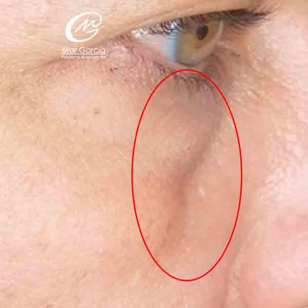 mujer con ojera hundida antes relleno acido hialuronico