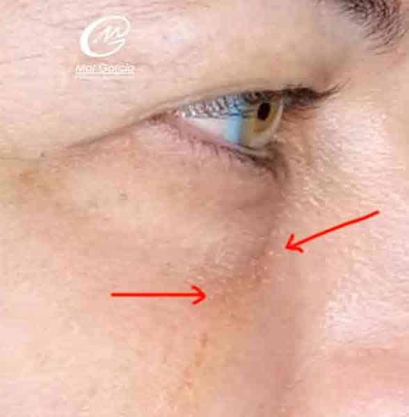 mujer sin ojera hundida despues relleno acido hialuronico