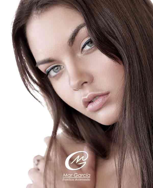 mujer con ojeras rellenas con acido hialuronico