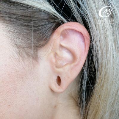 oreja_antes_tratamiento_lobuloplastia